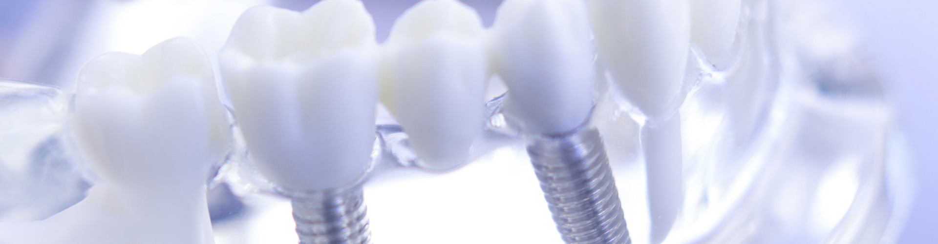 All-on-4 Dental Implants Elk Grove, CA
