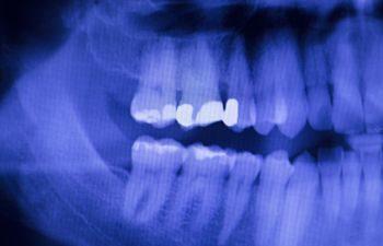 Dental X Rays Elk Grove CA